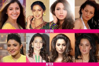 Bollywood Plastic Surgeries