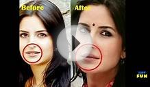 Bollywood Divas And Their Plastic Surgeries | Images